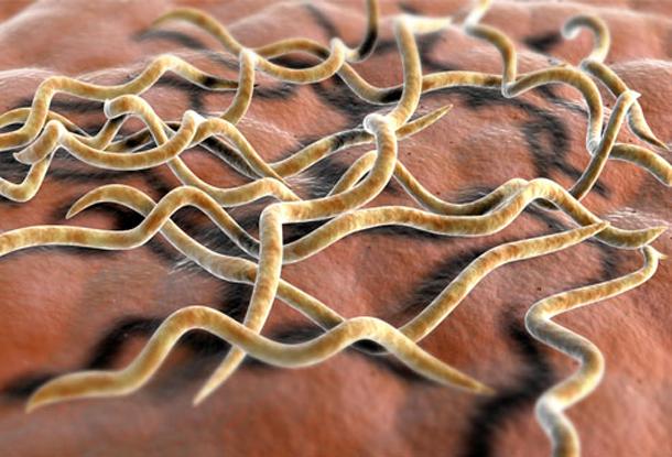Бактериальные энцефалиты