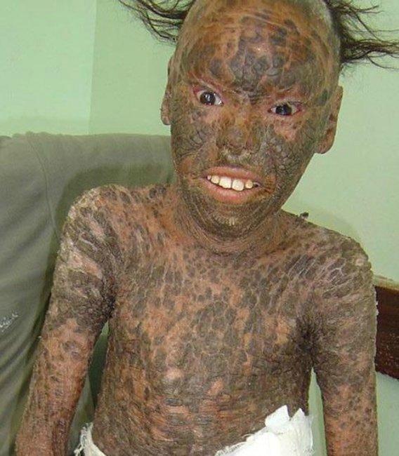 У меня ужасная кожа на теле