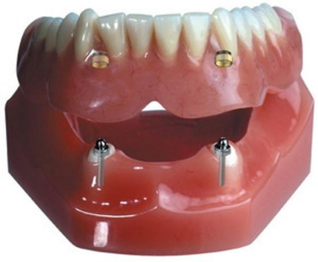 Условно съемный протез на своих зубах