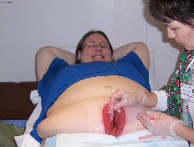 секс после родов почему больно
