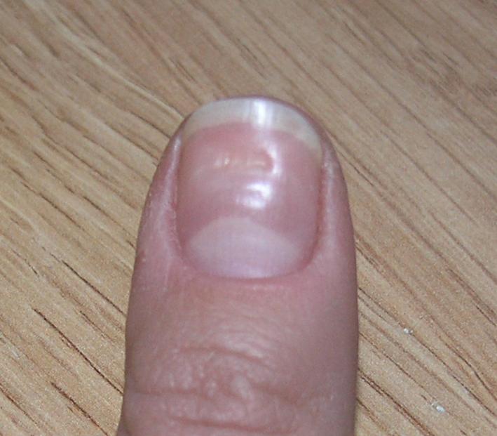 Нарыв на пальце как лечить в домашних условиях