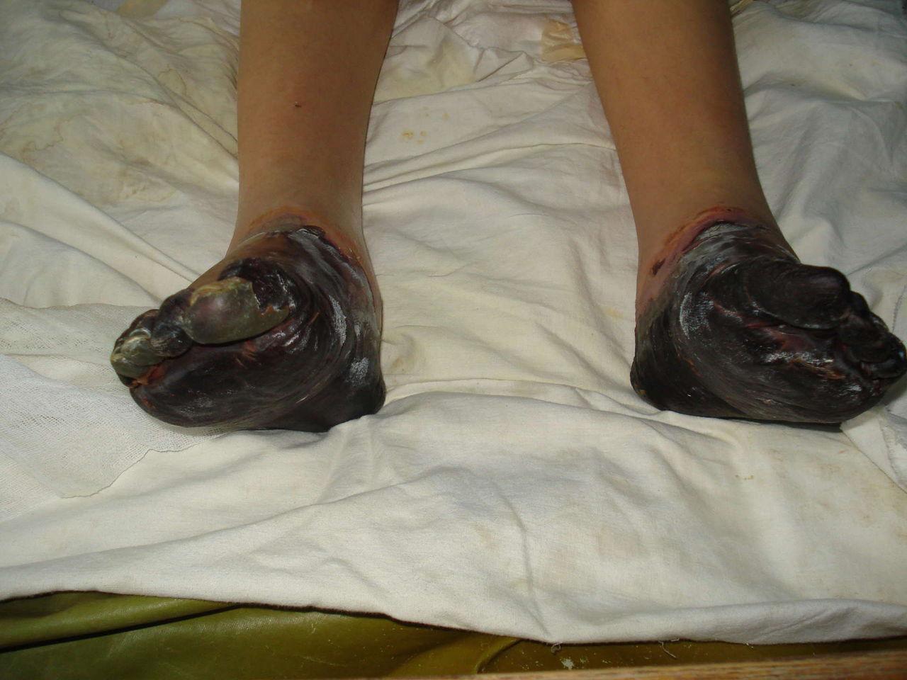 Прапорщик голеностопный сустав как убрать боль суставов коленей трутся друг о друга